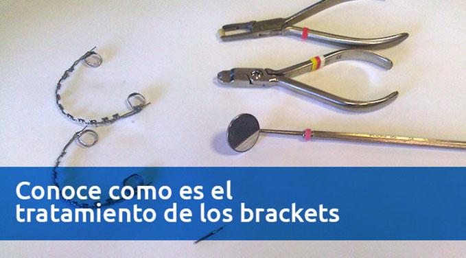Conoce-como-es-el-tratamiento-de-los-brackets-1