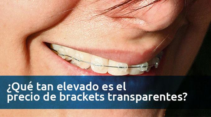 Que-tan-elevado-es-el-precio-de-brackets-transparentes
