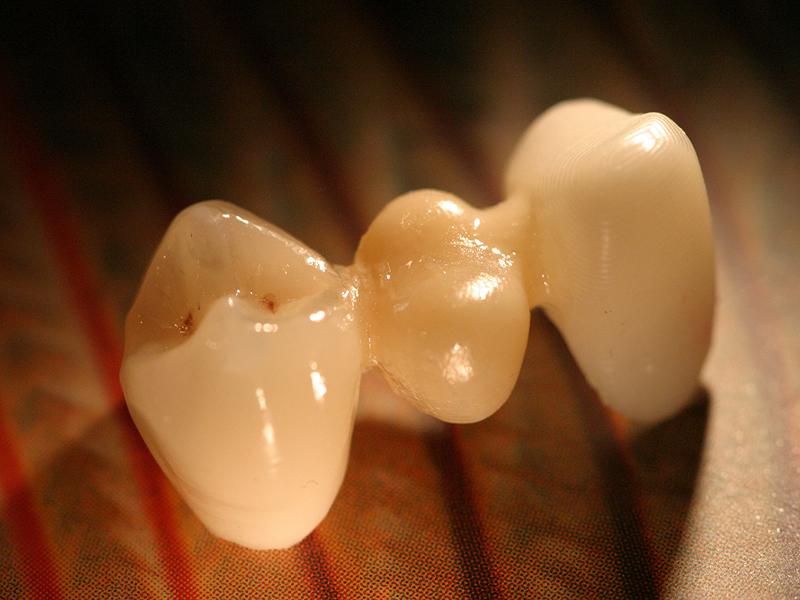 que-es-un-puente-dental