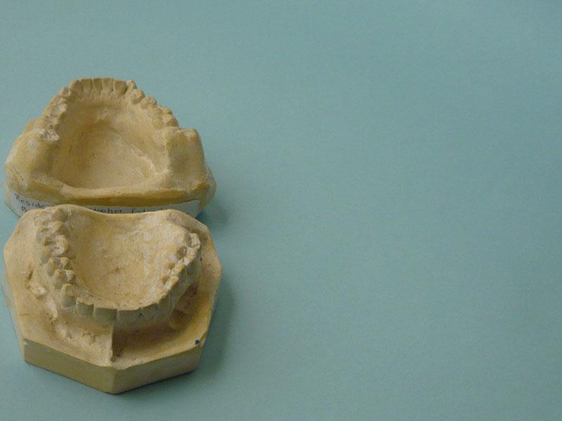 tipos-de-yesos-dentales